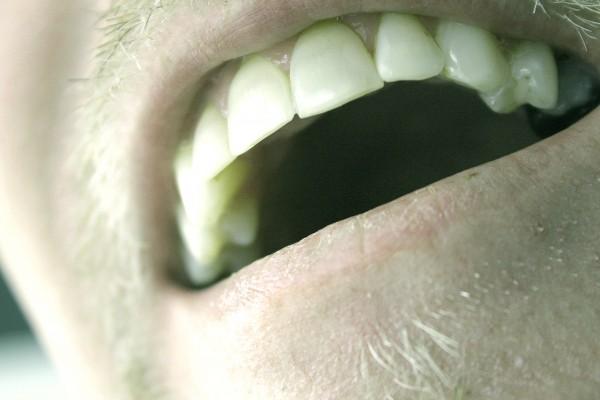 歯石を除去して口臭をスッキリさせると得する9つの理由