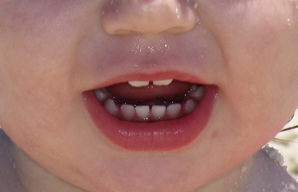 子供の口臭に気づいたら、今すぐ行うべき9つの行動