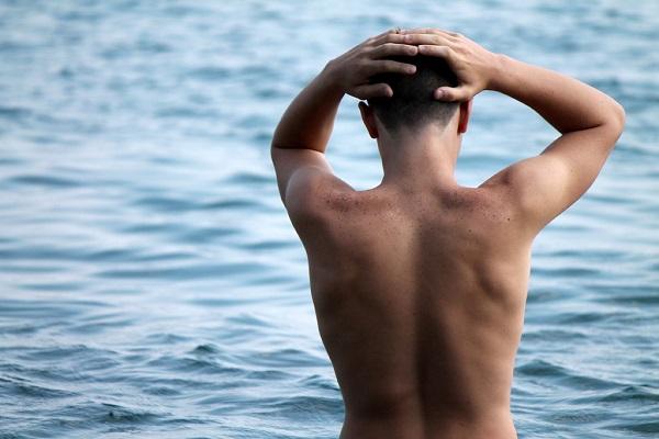 円形脱毛症の半分は薬では治らない9つの理由