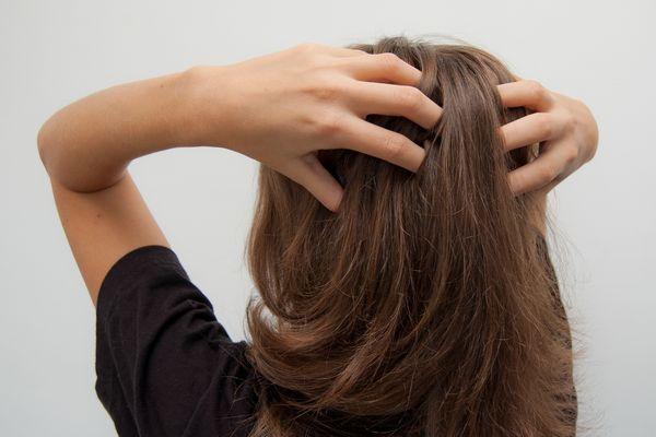 頭皮に出来たにきびが、あなたの毛根に発している7つの危険信号
