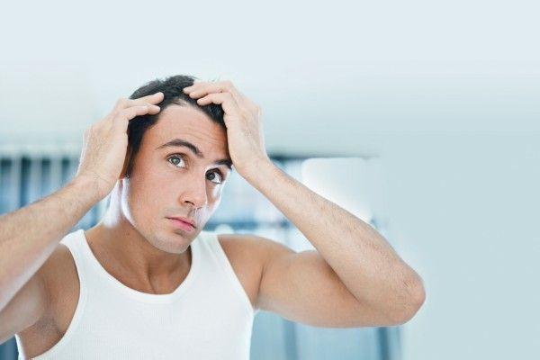 生え際の発毛がハゲを食い止める最後の砦である5つの理由