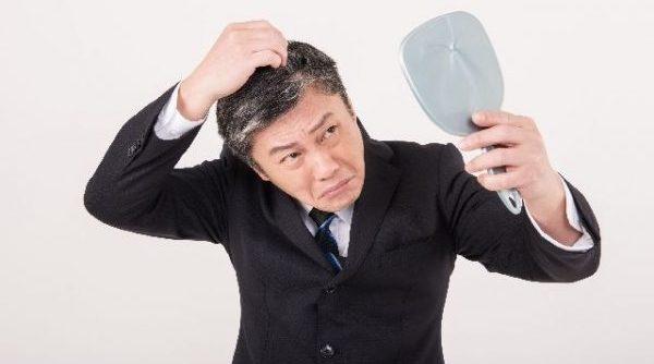 抜け毛予防なら!今すぐ改善したい5つの生活習慣