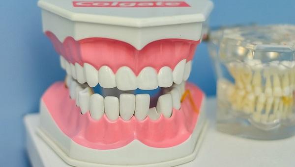 歯石がたまると口臭に!正しいお口のケア方法