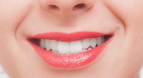 歯石は自分で取れるもの??正しい取り方と3つの注意点